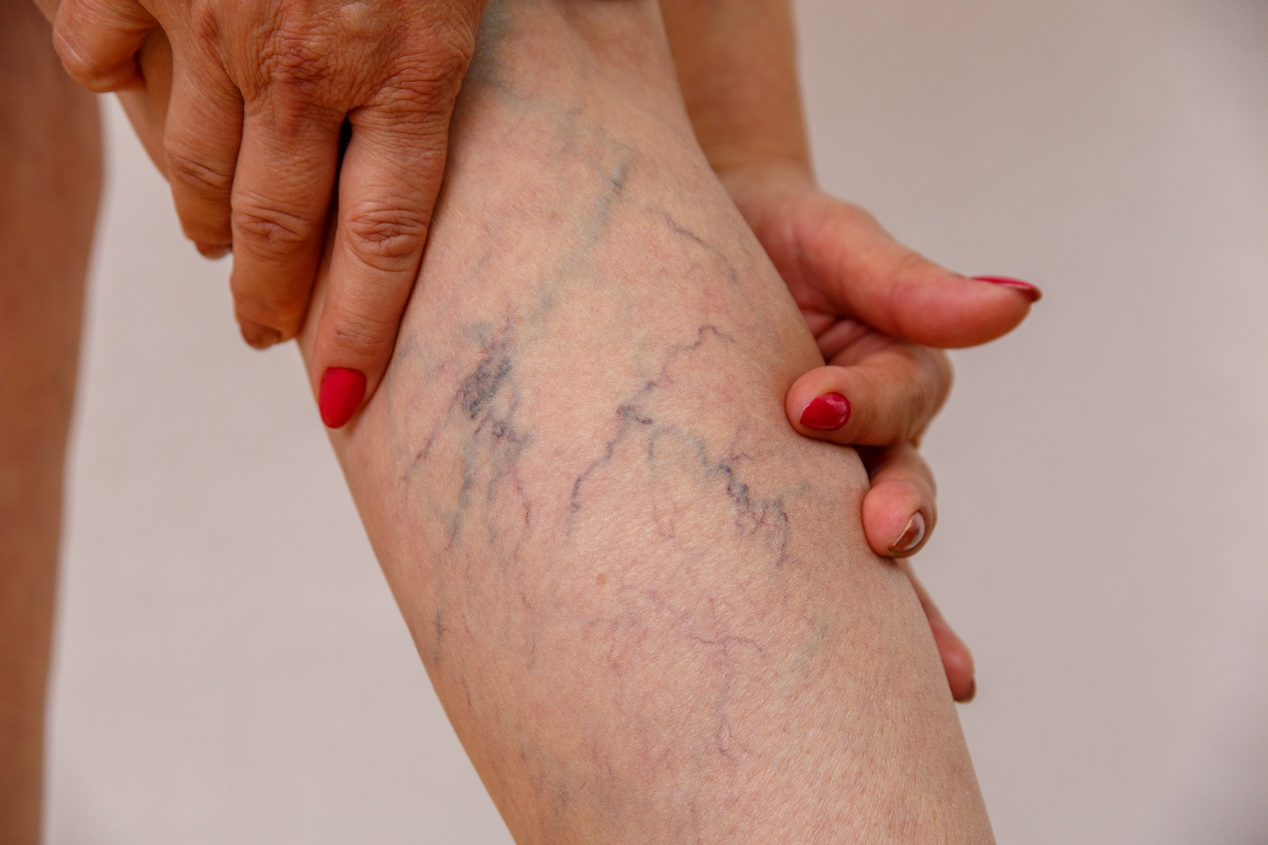 """Are you looking for the """"best spider vein treatment center near me in Long Island?"""" In this article, we describe how to find the best vein clinics and vein specialists in LI."""