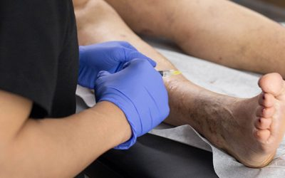 What's the Best Vein Clinic Near Franklin Square?